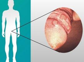 [Candidíase no homem pode causar feridas e infecção grave: como identificar!]