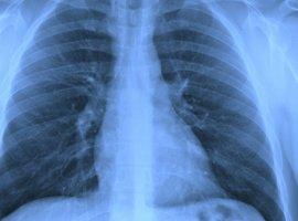 [Aperto no peito e tosse frequente podem ser sinais de água no pulmão]