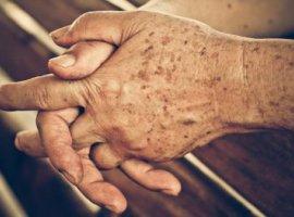 [Manchas escuras na mão NÃO são causadas pela idade: 1 cuidado é capaz de evitar]