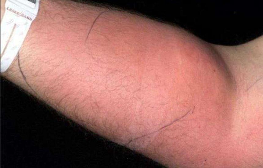 [Homem injetou sêmen no braço por 18 meses para curar dor nas costas]