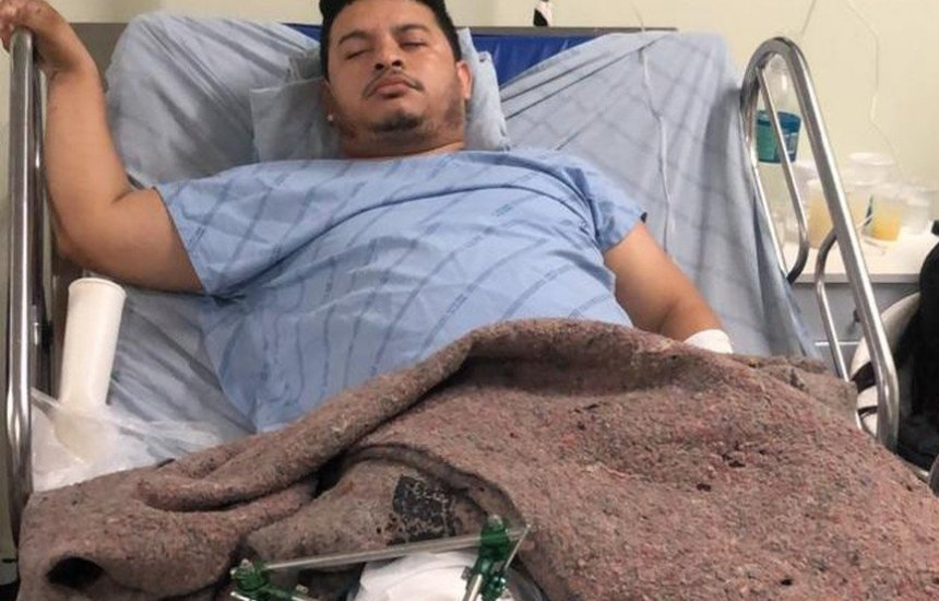 [Transferência para Fortaleza Sanfoneiro baleado em ação policial que matou dança]