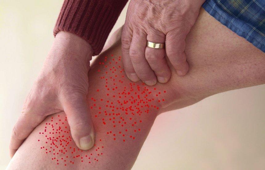 [Formigamento pode ser sinal de má postura e também sintoma de doença]
