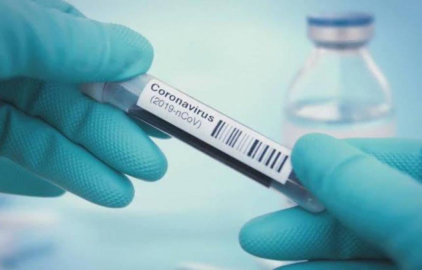 [226: casos de coronavírus disparam em Camaçari com 36 confirmações em 24h]