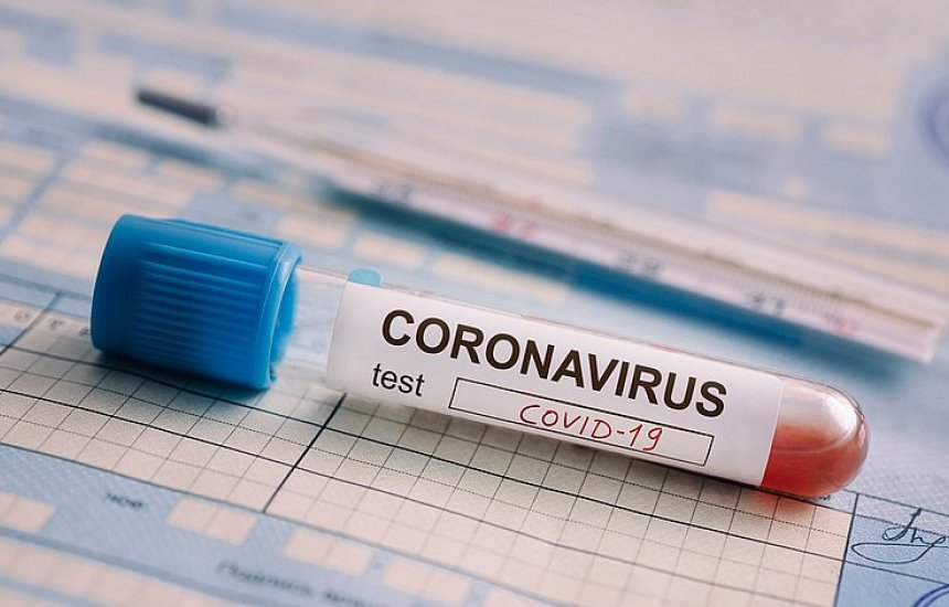 [Boletim epidemiológico: Camaçari tem 69 casos ativos de Covid-19]